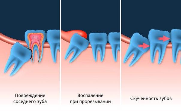 Зубы мудрости. Какие проблемы могут с ними возникнуть?