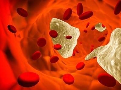 Атеросклероз! Что это такое и как с ним бороться
