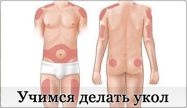 Как сделать укол внутримышечно