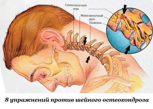Восемь упражнений против шейного остеохондроза. 11578.jpeg