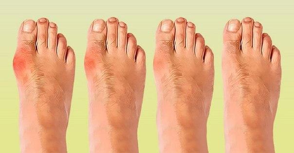 Пять способов избавиться от косточки на ноге без помощи хирурга. Конец страданиям!