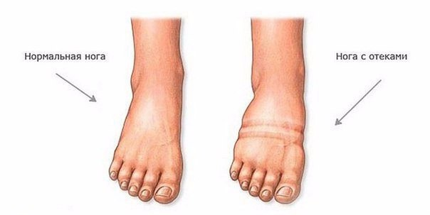 Как снять отечность ног?