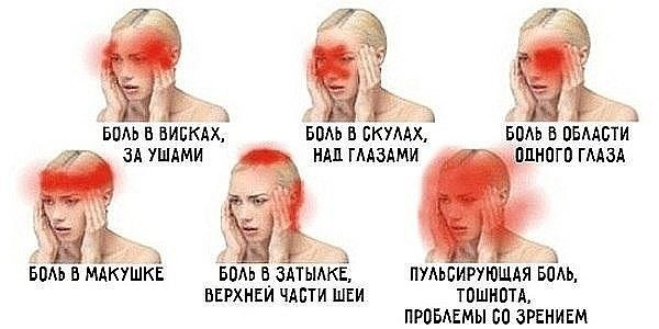 О чем говорит боль в разных частях головы?