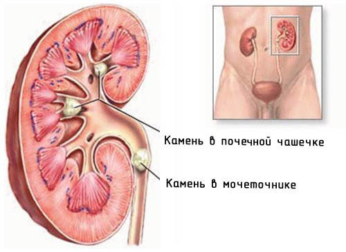лекарство для очищения кишечника шлаков
