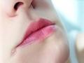 Трещины в уголках губ:причины и лечение