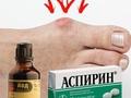 Лечение подагры йодом и аспирином: народные рецепты
